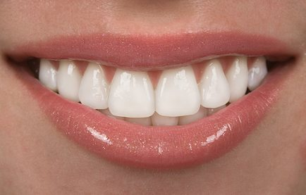How to select the best Hollywood smile clinic